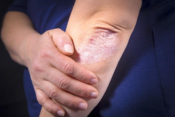 8 ideas falsas sobre la artritis psoriásica - y cómo corregirla suavemente