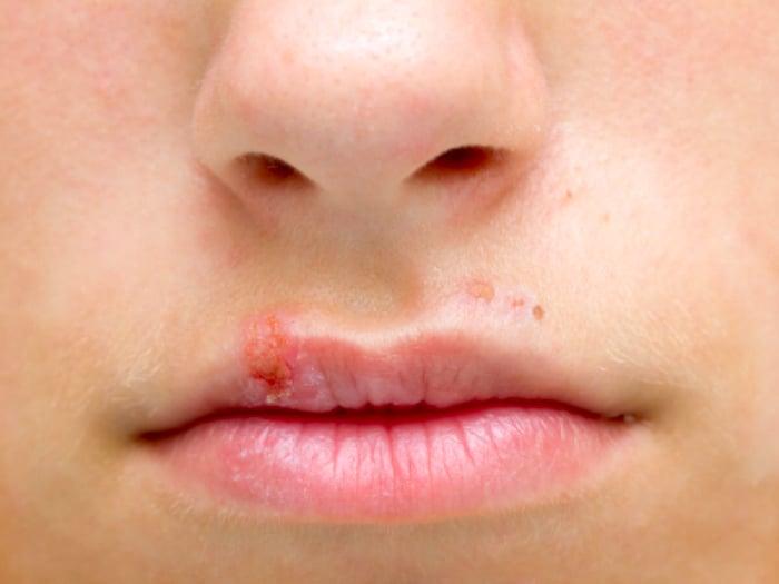Remiendo seco en el labio que no ira lejos: ¿es cancer de labio?