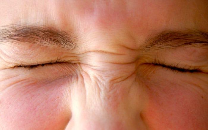 متلازمة سجوجرن: الأسباب والأعراض