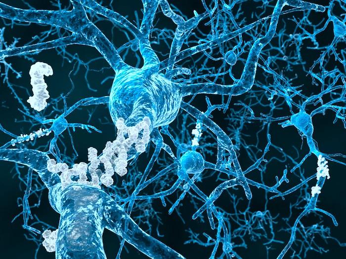 A terapia magnética pode aliviar a doença de Alzheimer leve