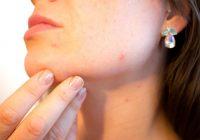8 Condiciones medicas que podrian causar su acne adulto