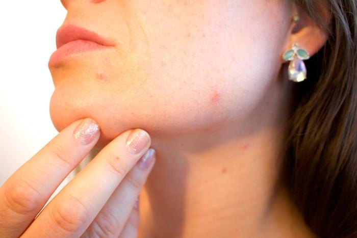 8 Medicinske pogoji, ki lahko povzroči akne odraslih