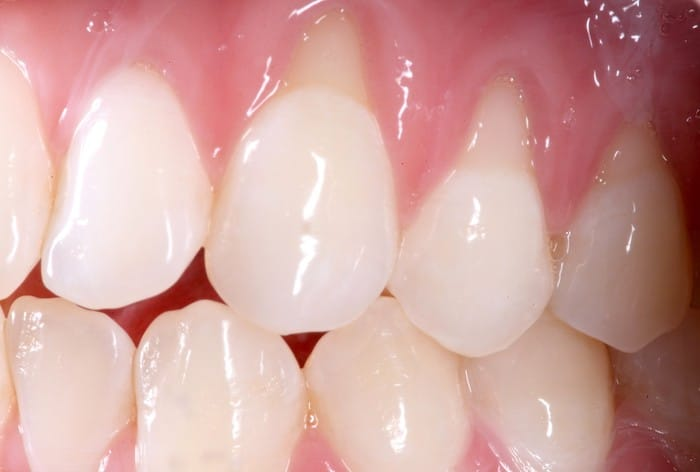 Gum Graft Surgery