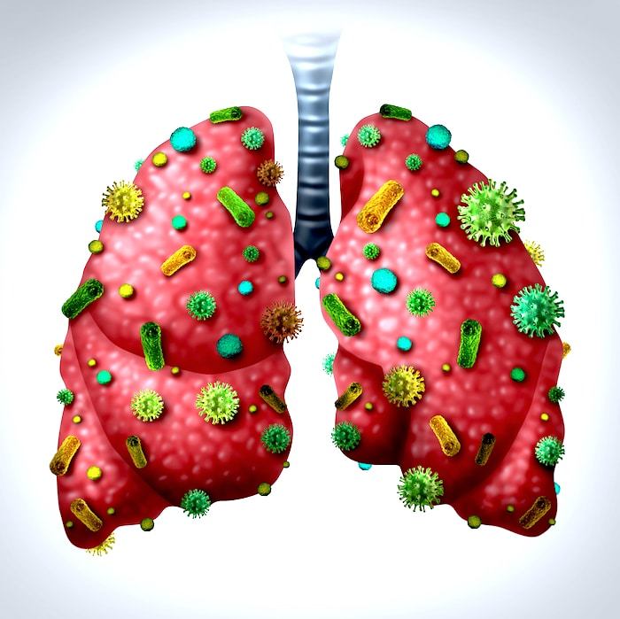 الالتهاب الرئوي الخصائص السريرية العلاج والمضاعفات
