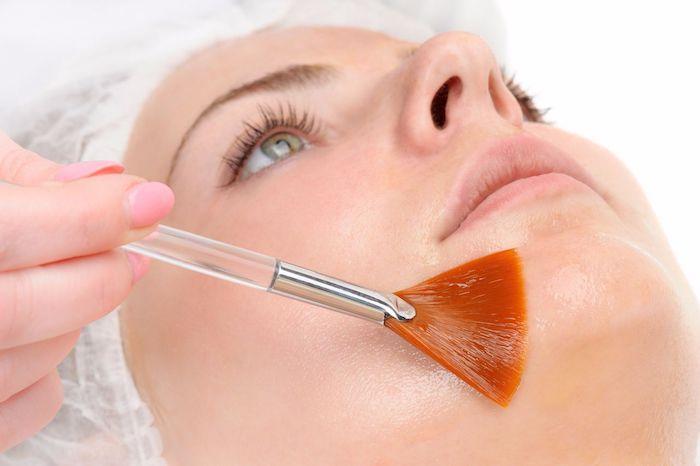 Tratamento químico para acne adulta: é seguro e eficaz?