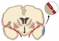 Reduktion der Inzidenz von Schlaganfällen mit Thrombolytika