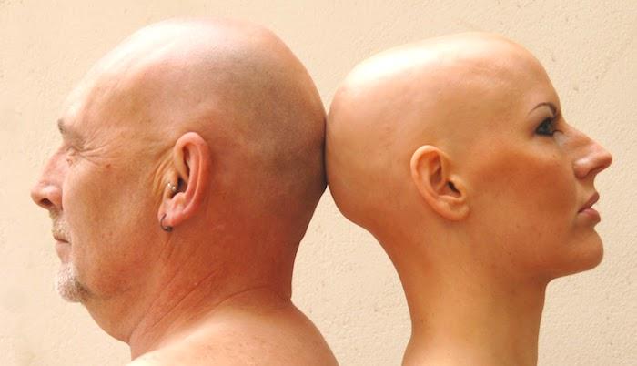 Alopécie areata totalis