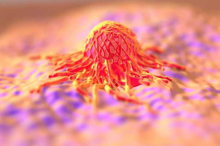 Fatores de risco para câncer de esôfago