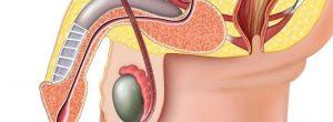 Les Causes de monorquismo: avoir un seul testicule