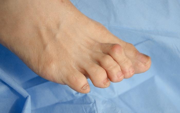 مطرقة اصبع القدم جراحة