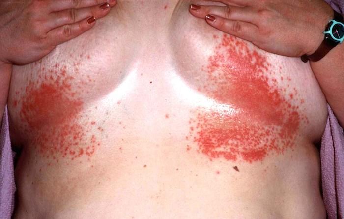 Dermatitis in den Brüsten