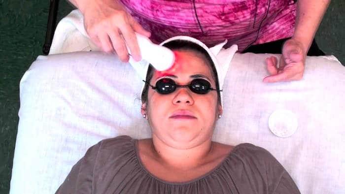Dispositivos para tratar el acne del adulto son seguros y eficaces