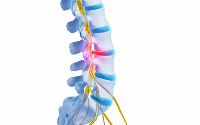 Traitement de la douleur du nerf sciatique