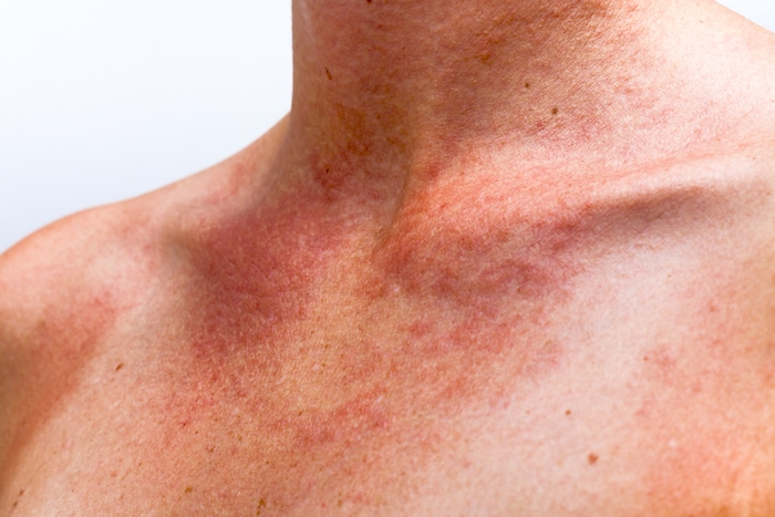 Sonnenvergiftung oder Lichtdermatitis