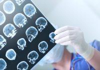 الفص الصدغي الصرع: التشخيص والعلاج