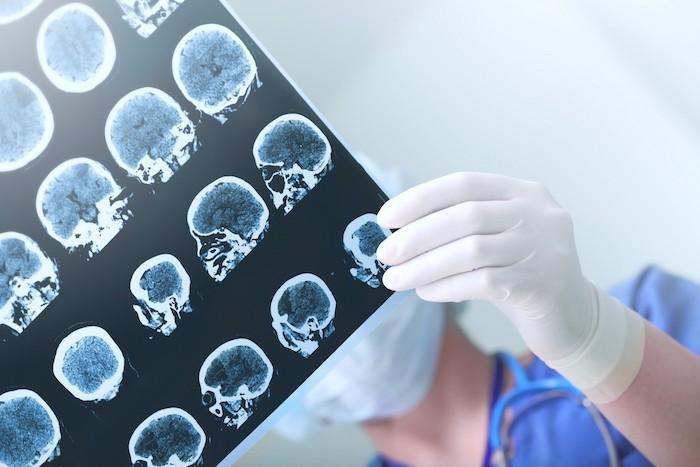 Epilepsia del lóbulo temporal: diagnóstico y tratamiento