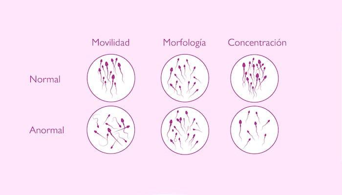 Semen normal y anormal