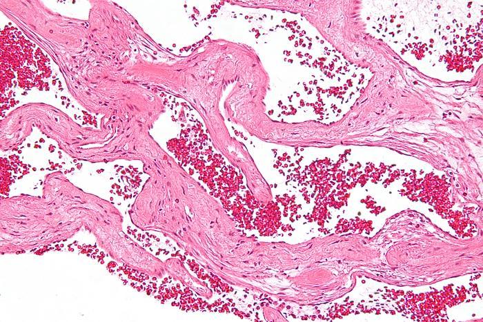 L'hémangiome hépatique est une tumeur bénigne