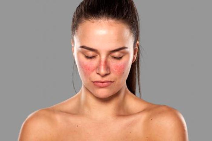 El Lupus Eritematoso Sistémico (LES)