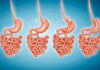 Cirugías de pérdida de peso