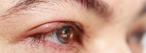 是什么原因导致浮肿的眼睑?