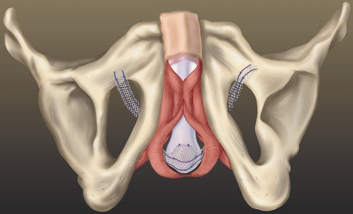 Complications de la fronde urétrale