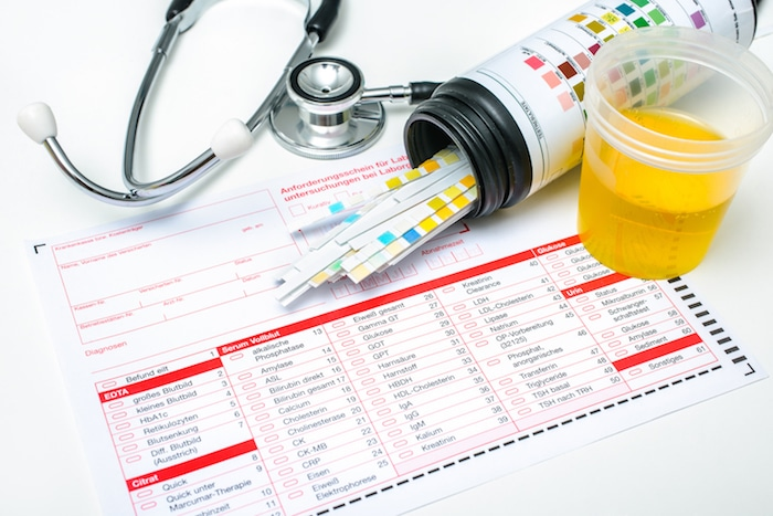Proteínas en la orina: causas y factores de riesgo