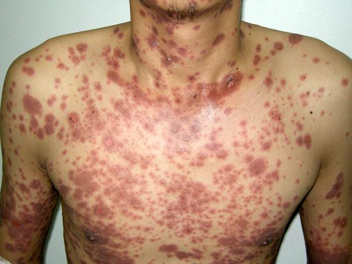 Syndrome de Stevens Johnson (SSJ): symptômes et traitement