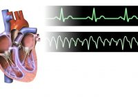 La taquicardia súbita tiene numerosas causas