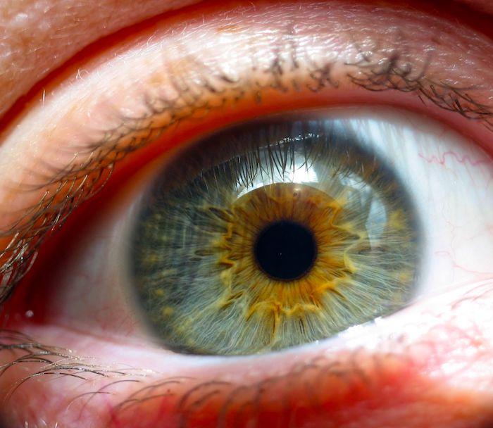Uveítis: buenos tratamientos naturales, pero sin cura natural