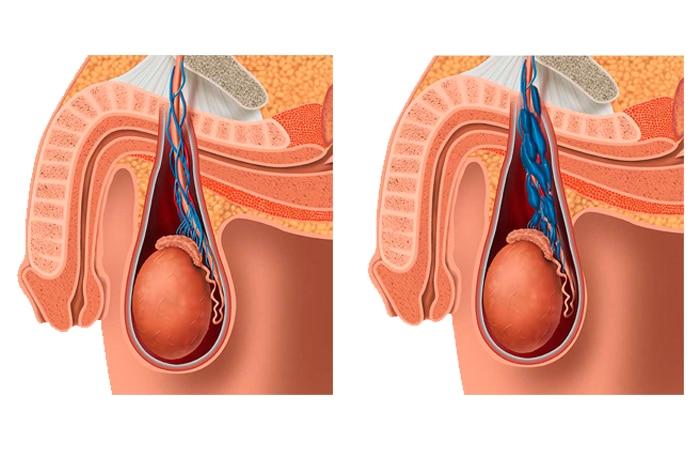 Embolización de varicocele