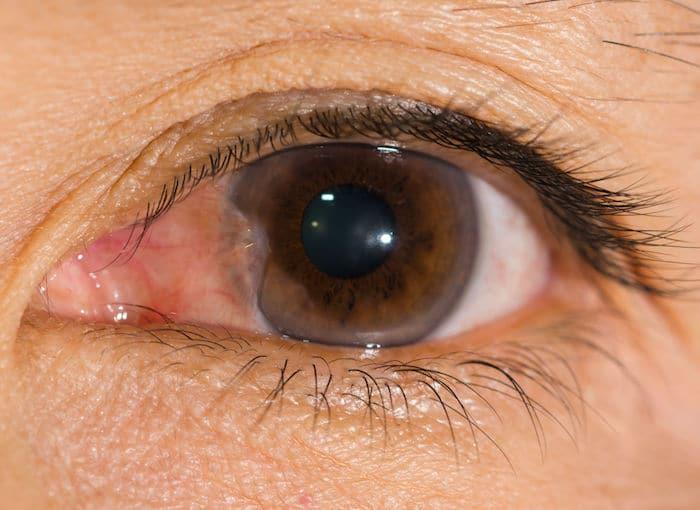 علاج pinguecula و pterygium