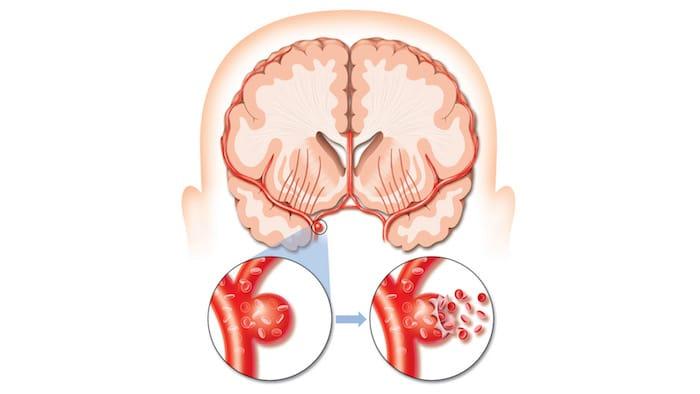 Redução da gravidade do acidente vascular cerebral com exercício físico regular