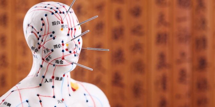 Akupunktur funktioniert, obwohl die Wissenschaftler nicht wissen, warum