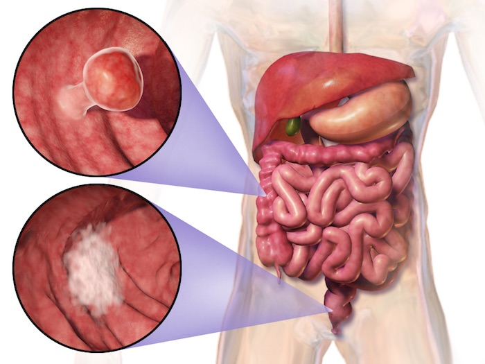 Cáncer de colon (colorrectal): riesgos y consejos de prevención