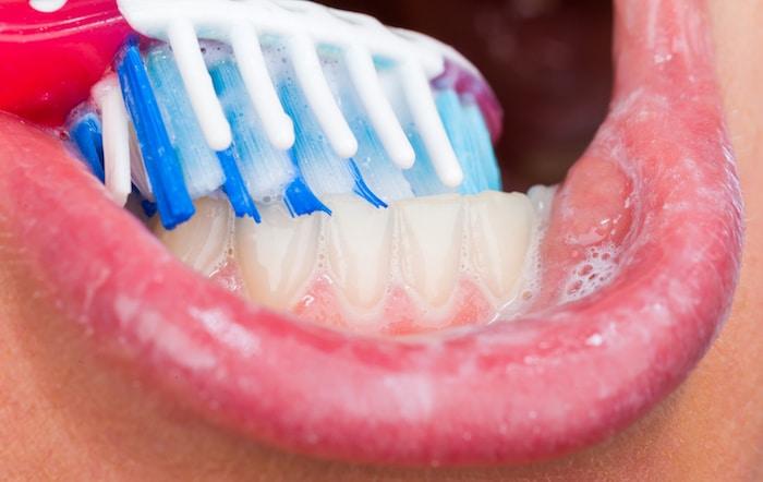 Cuidado bucal durante el tratamiento del cáncer: cómo cuidar la boca y los dientes