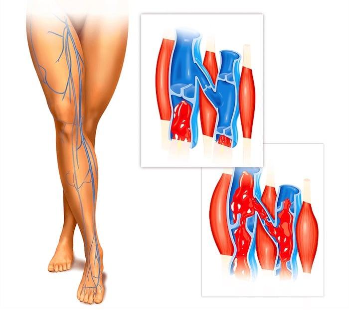 什么是慢性静脉血不足?