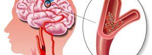 Como reconhecer um acidente vascular cerebral?