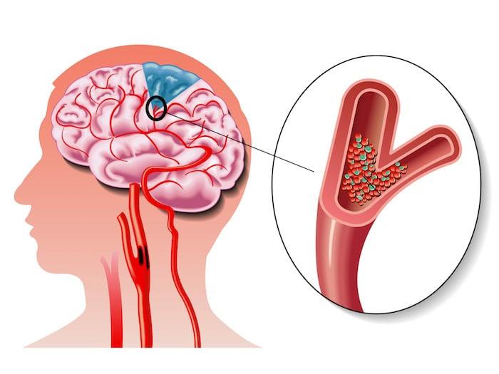 Comment reconnaître un accident vasculaire cérébral?