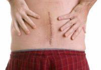 Recuperación de la cirugía de disco lumbar