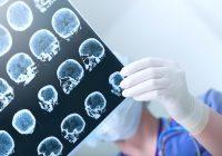 أورام المخ عند الأطفال: العلاج الجيني لعلاج أورام المخ عند الأطفال