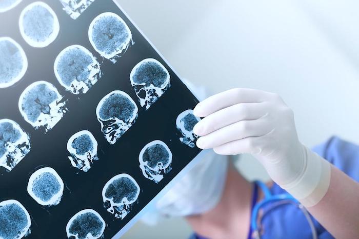 Tumores cerebrales pediátricos: terapia génica para el tratamiento de tumores cerebrales en niños