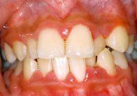علاج التهاب اللثة - أمراض اللثة (اللثة)