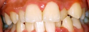 Tratamiento Para Periodontitis - Enfermedad Periodontal (Encías)