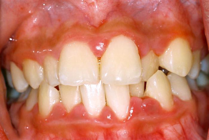 Le Traitement De La Parodontite - La Maladie Parodontale (Gencives)