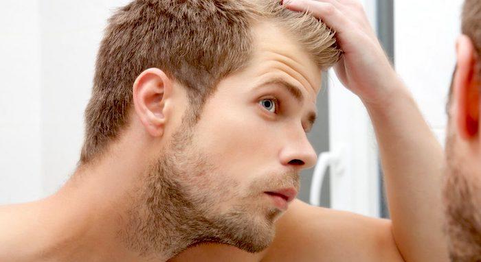 更有效的治疗方法的脱发