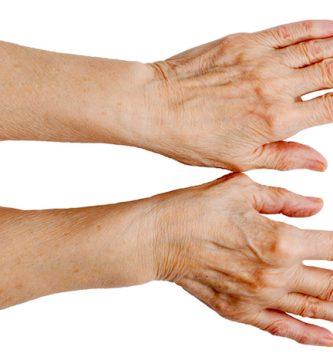 Tratamiento para las manos venosas