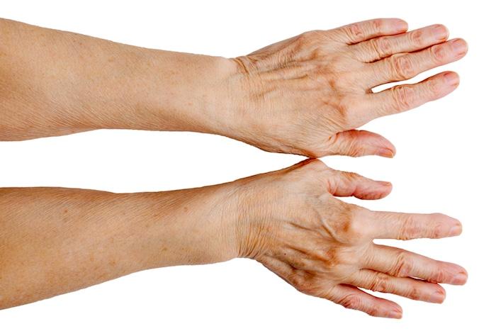Traitement pour les mains veineux