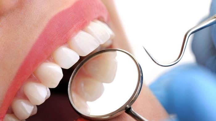 Como combater a cárie dentária após o tratamento com radiação para o câncer