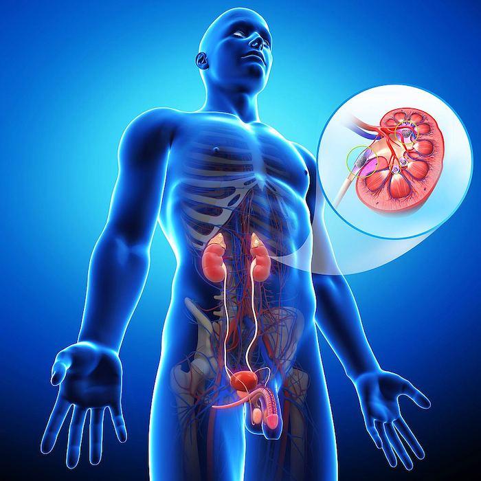 Komplikationen nach Nephrektomie (Nierenentfernung)